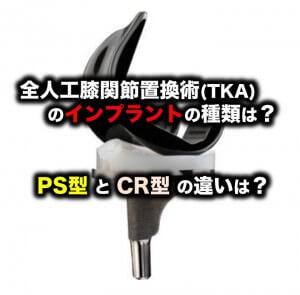 全人工膝関節置換術(TKA)のインプラントの種類は?PS型とCR型