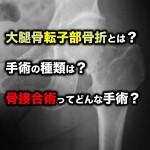 大腿骨転子部骨折とは?手術の種類は?骨接合術ってどんな手術?